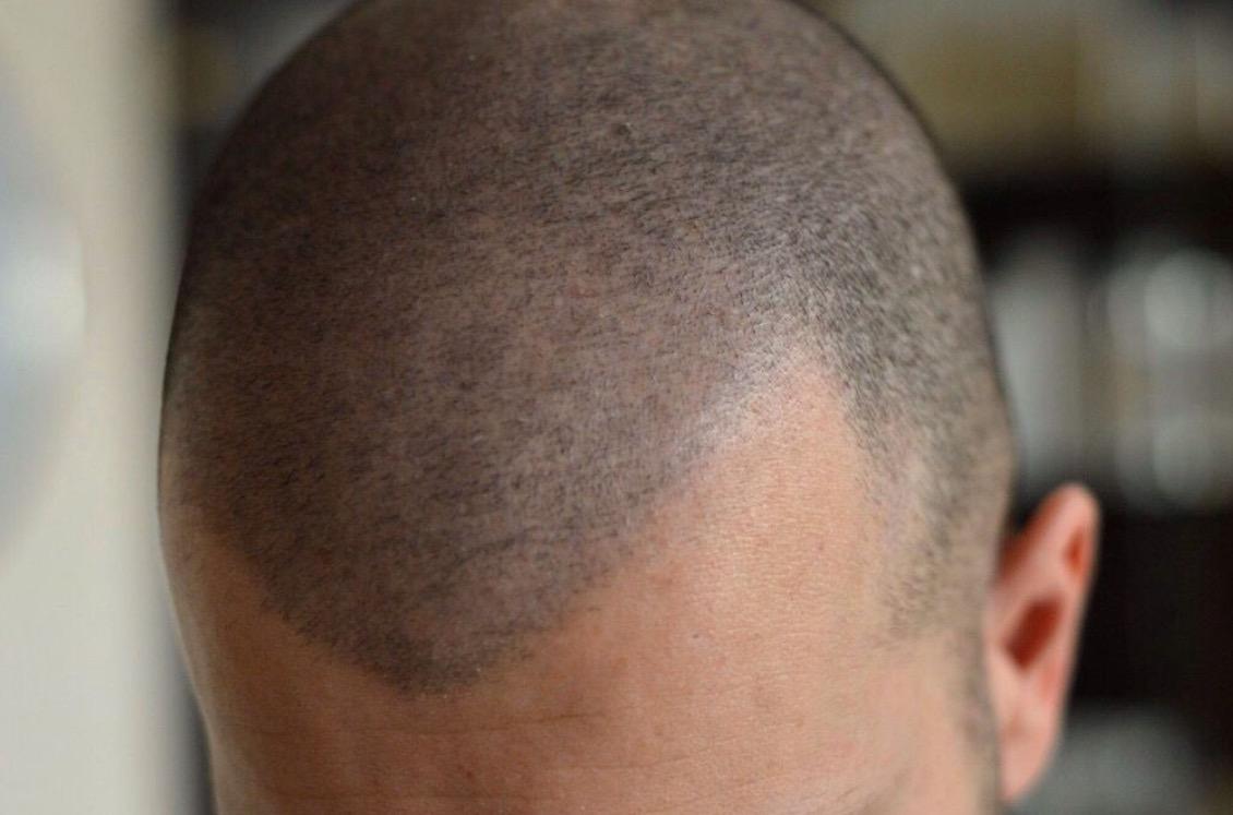 cheveux-pigmentation